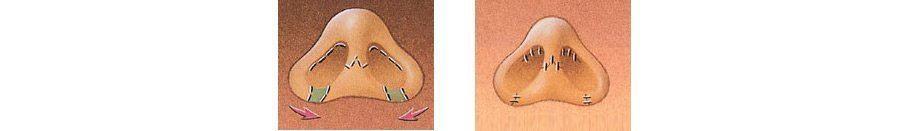 alas-nasales-reduccion-zaragoza