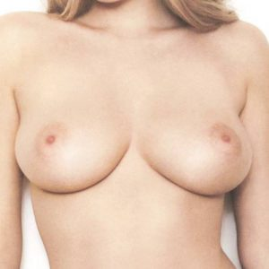 Aumento de pechos en zaragoza, también ofrecemos reducción de pechos y reconstrucción.