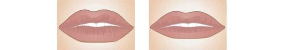 biopolimeros en labios