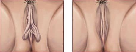 resultado antes y despues reduccion labios vaginales menores