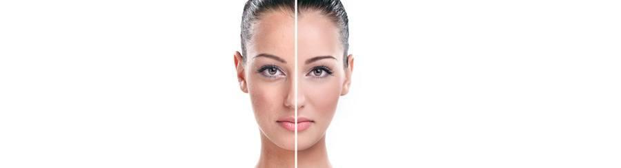 lipoimplante-facial-zaragoza
