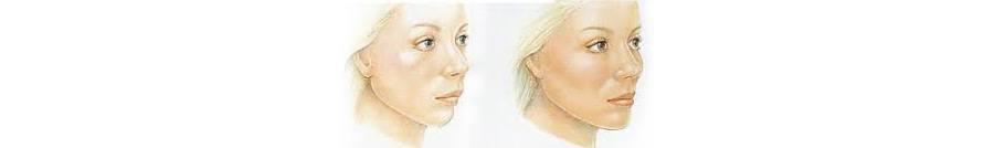lipoimplante-zaragoza-cirugia-plastica