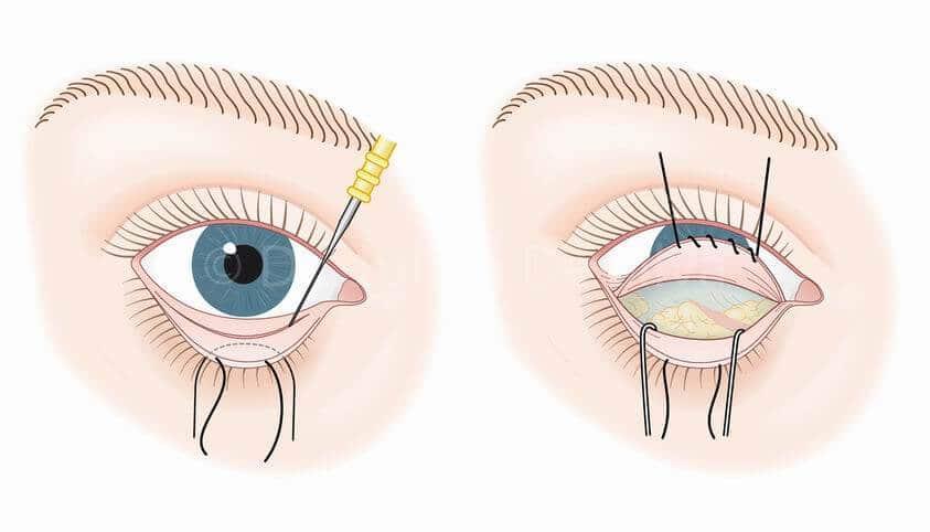 blefaroplastia cirugía parpados