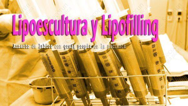 liposuccion lipoescultura