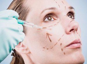 Mujer con marcaje para cirugía facial