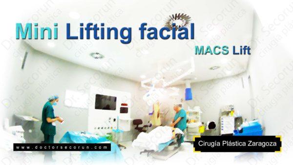 Lifting facial Zaragoza