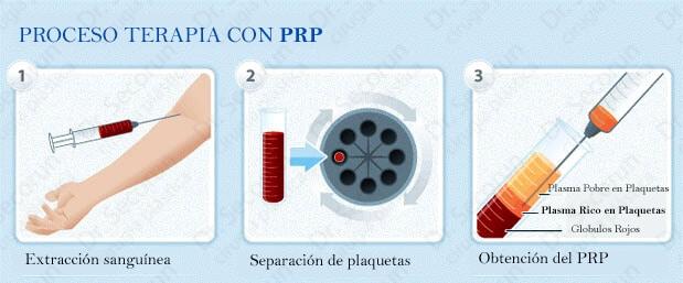 prp terapia Plasma Rico en Plaquetas
