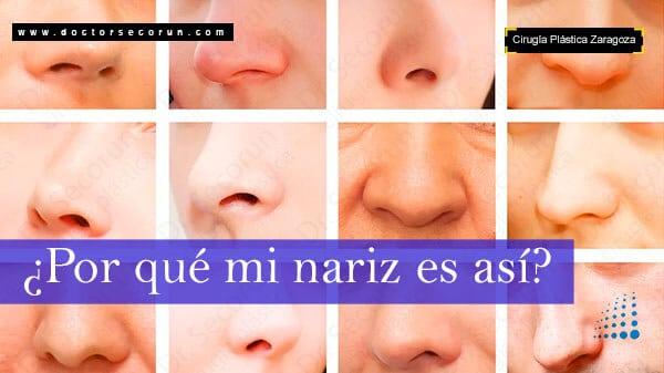 ¿Por qué es así mi nariz?