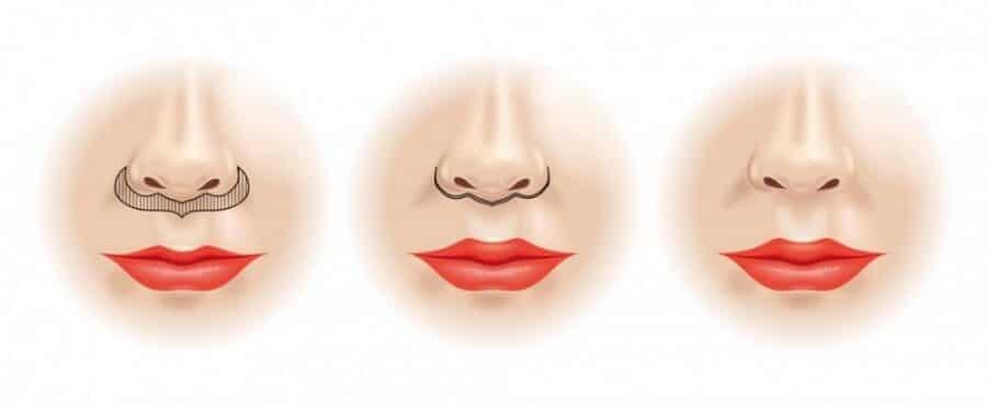 Lift Lip - Lifting de Labio