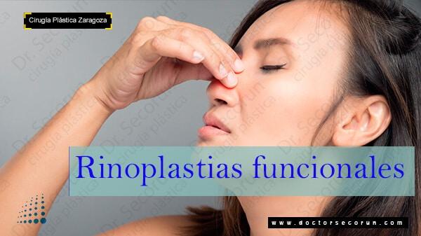 rinoplastia funcional