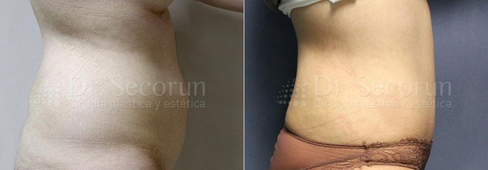 caso abdominoplastia 10 Abdominoplastia   Cirugía Estética