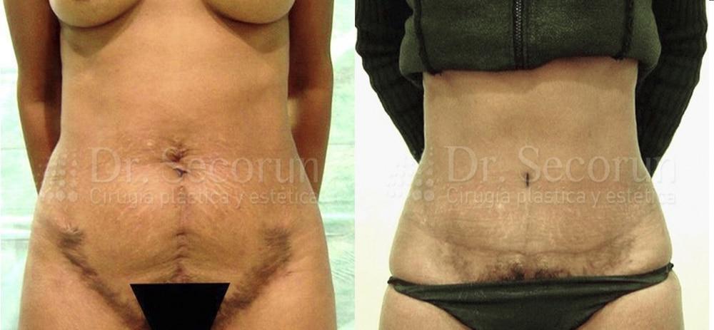 caso abdominoplastia 3 Abdominoplastia   Cirugía Estética