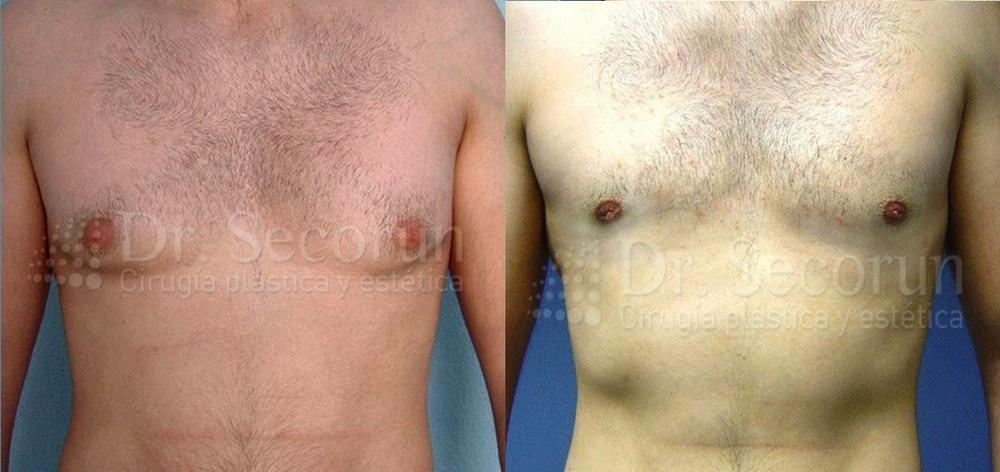 caso ginecomastia 1 Ginecomastia | Eliminación de pecho en hombres