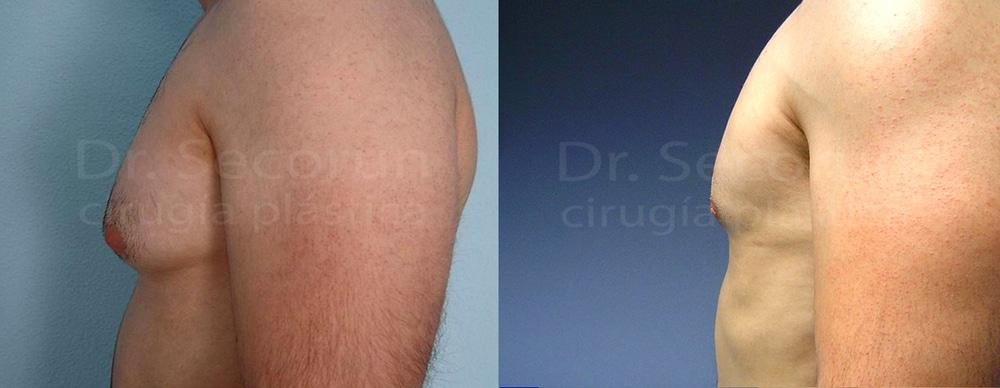 caso ginecomastia 10 Ginecomastia | Eliminación de pecho en hombres