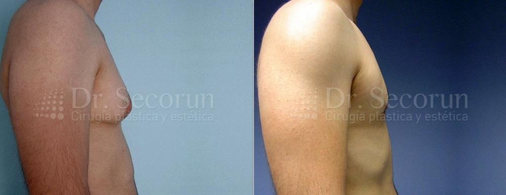 caso ginecomastia 2 Ginecomastia | Eliminación de pecho en hombres