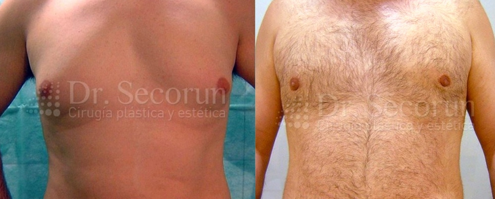 caso ginecomastia 3 Ginecomastia | Eliminación de pecho en hombres