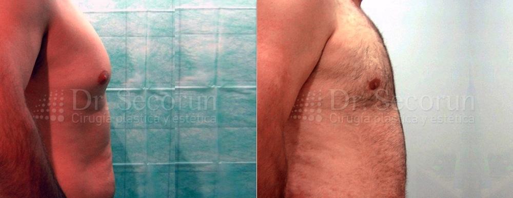 caso ginecomastia 5 Ginecomastia | Eliminación de pecho en hombres