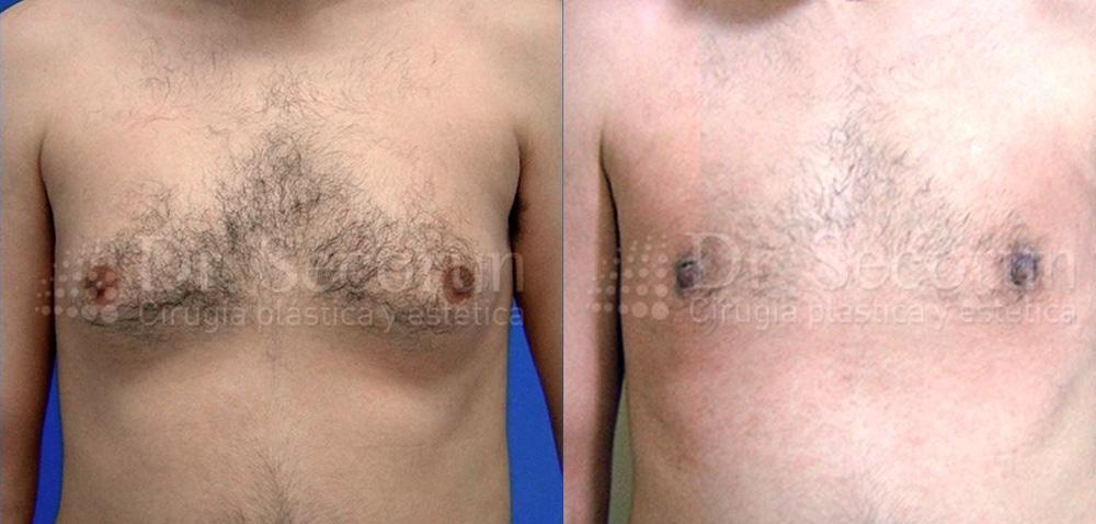 caso ginecomastia 6 Ginecomastia | Eliminación de pecho en hombres