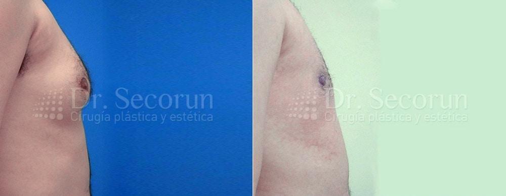 caso ginecomastia 7 Ginecomastia | Eliminación de pecho en hombres