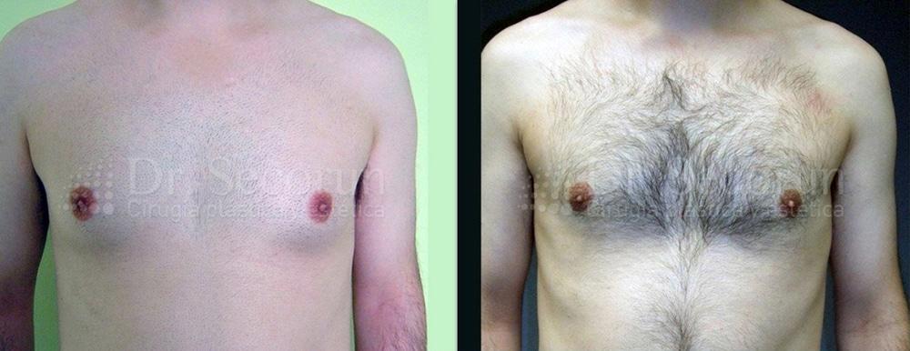 caso ginecomastia 8 Ginecomastia | Eliminación de pecho en hombres