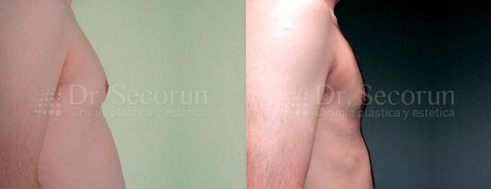 caso ginecomastia 9 Ginecomastia | Eliminación de pecho en hombres