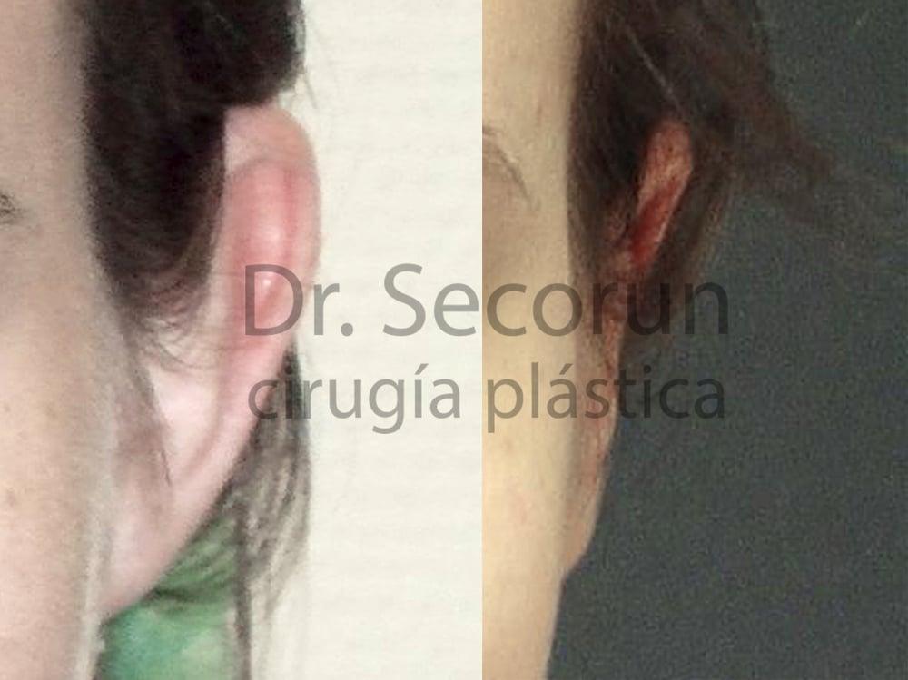 caso otoplastia 1 Otoplastia   Operación de orejas
