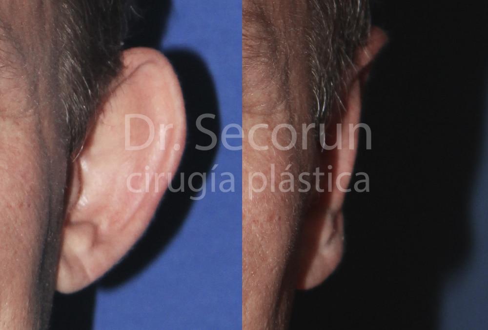 caso otoplastia 12 Otoplastia   Operación de orejas
