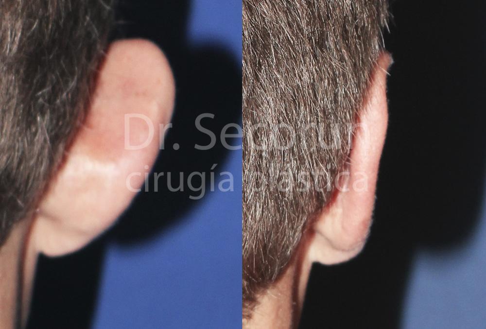 caso otoplastia 13 Otoplastia   Operación de orejas