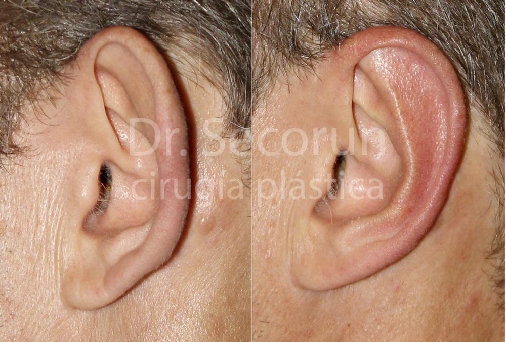 caso otoplastia 14 Otoplastia   Operación de orejas