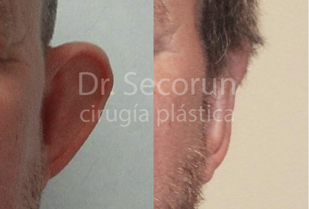 caso otoplastia 15 Otoplastia   Operación de orejas