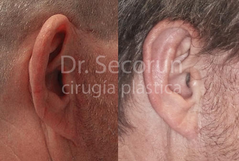 caso otoplastia 16 Otoplastia   Operación de orejas