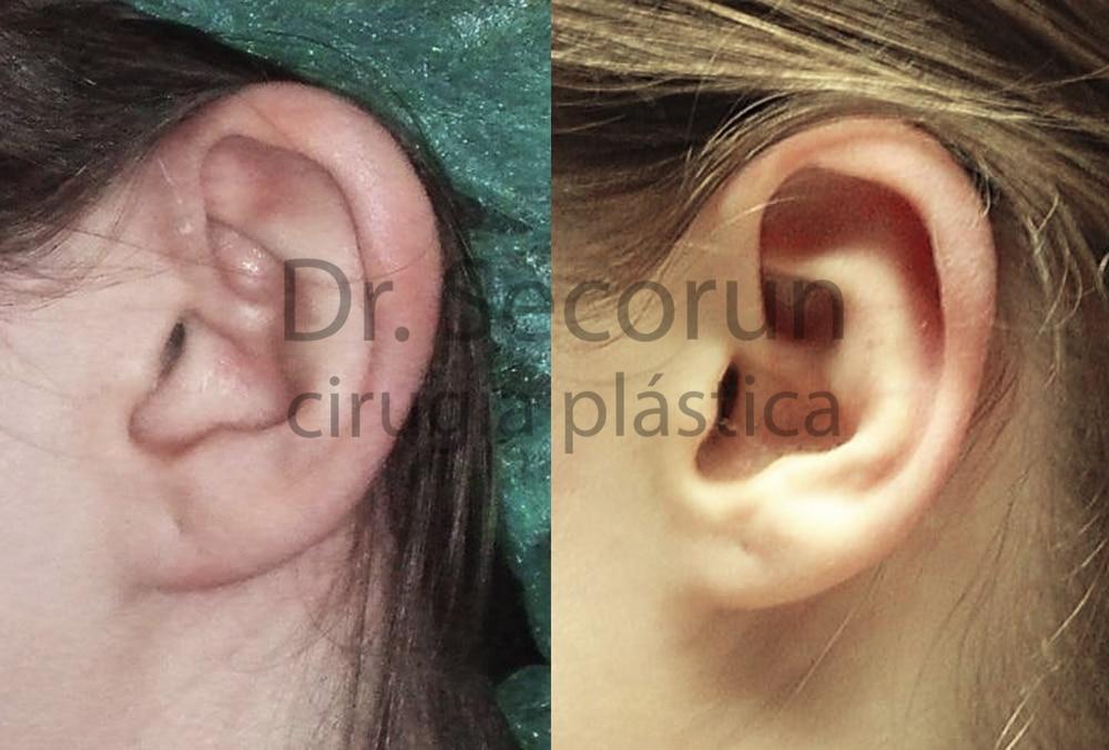 caso otoplastia 2 Otoplastia   Operación de orejas