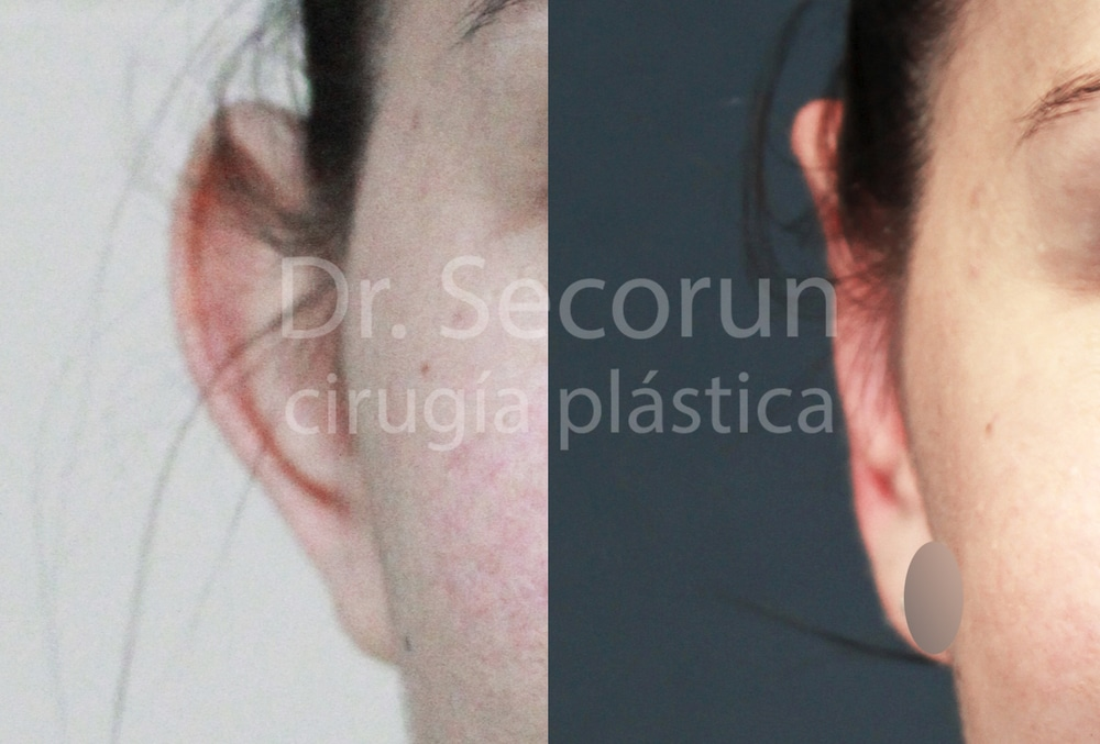 caso otoplastia 5 Otoplastia   Operación de orejas