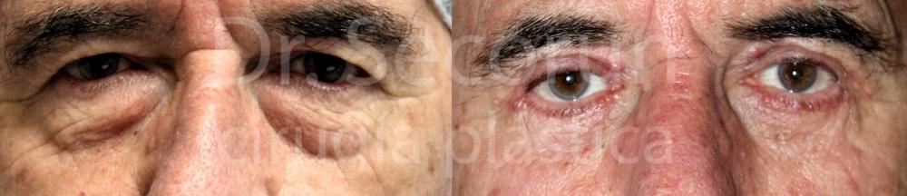 caso parpados 10 Cirugía de los Párpados: Blefaroplastia