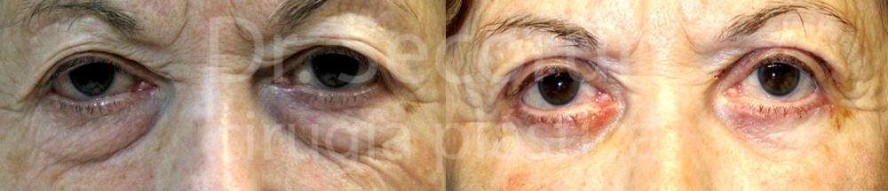 caso parpados 11 Cirugía de los Párpados: Blefaroplastia