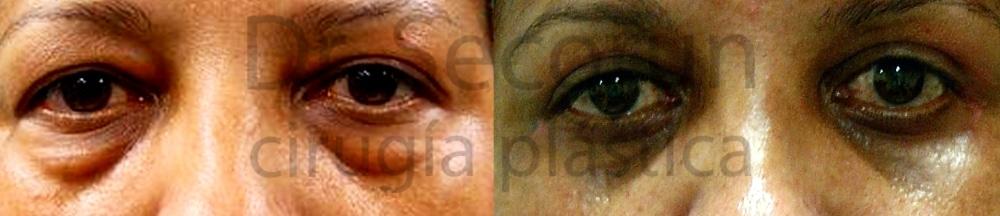 caso parpados 12 Cirugía de los Párpados: Blefaroplastia