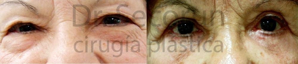 caso parpados 13 Cirugía de los Párpados: Blefaroplastia