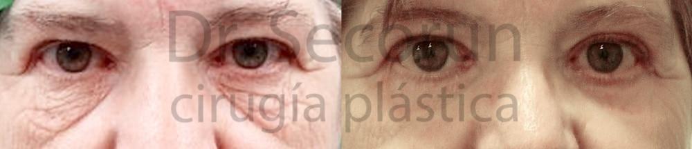caso parpados 14 Cirugía de los Párpados: Blefaroplastia