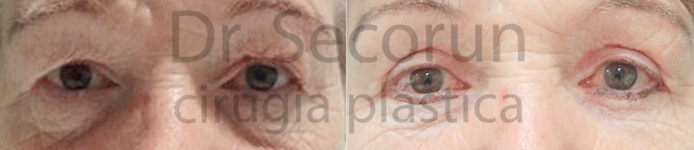 caso parpados 15 Cirugía de los Párpados: Blefaroplastia