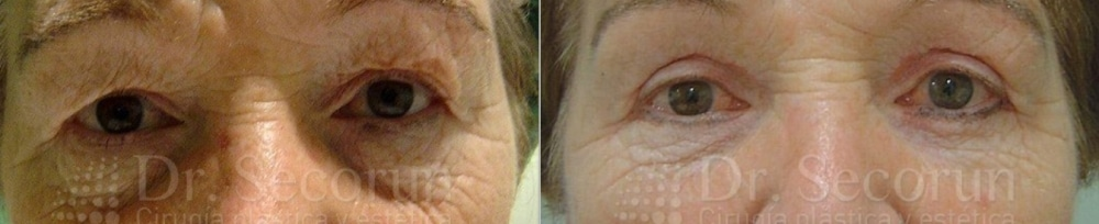caso parpados 2 Cirugía de los Párpados: Blefaroplastia