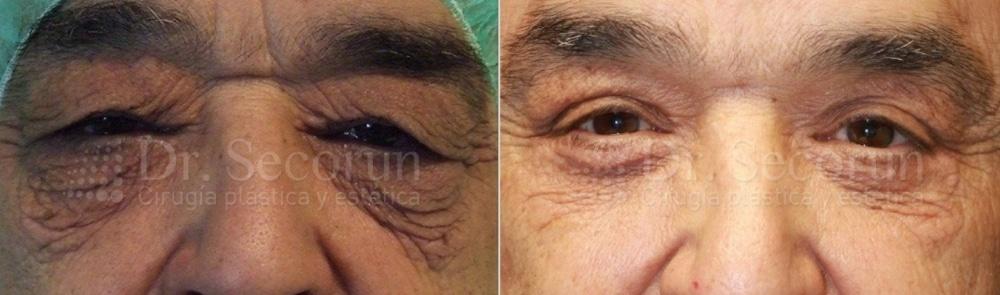 caso parpados 4 Cirugía de los Párpados: Blefaroplastia