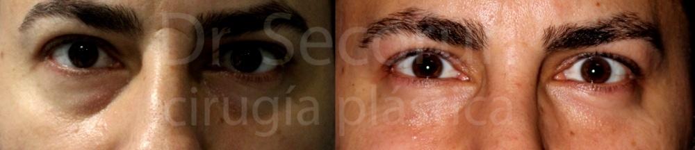 caso parpados 6 Cirugía de los Párpados: Blefaroplastia