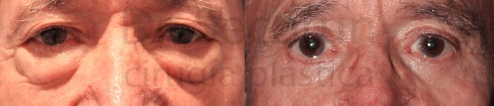 caso parpados 8 Cirugía de los Párpados: Blefaroplastia