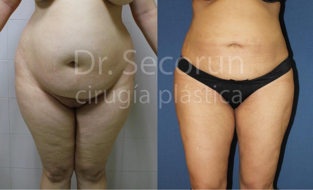 liposuccion Liposucción y Lipoescultura