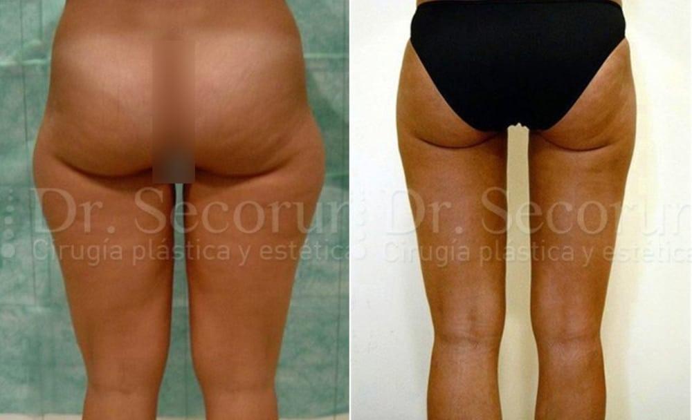 liposuccion1 Liposucción y Lipoescultura