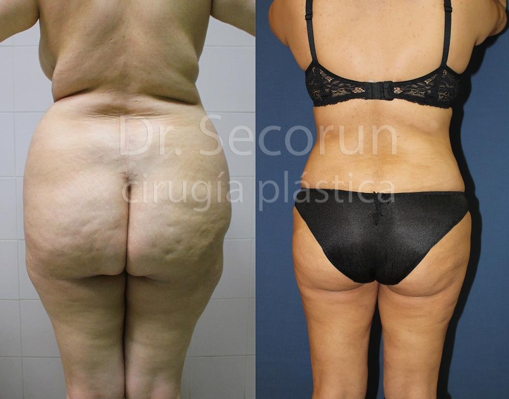 liposuccion4 Liposucción y Lipoescultura