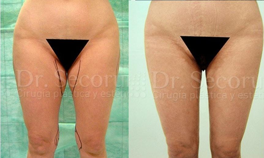 liposuccion6 Liposucción y Lipoescultura