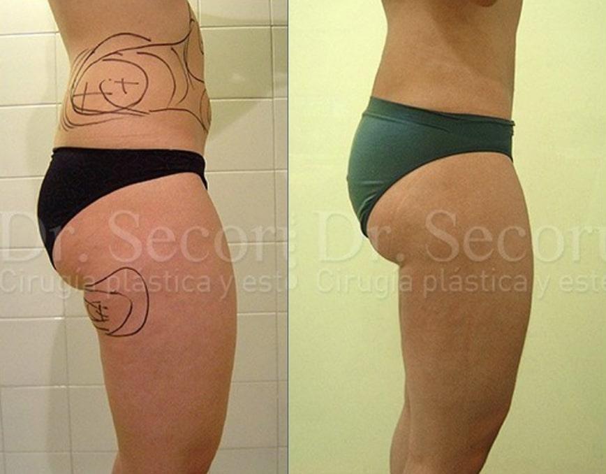 liposuccion9 Liposucción y Lipoescultura