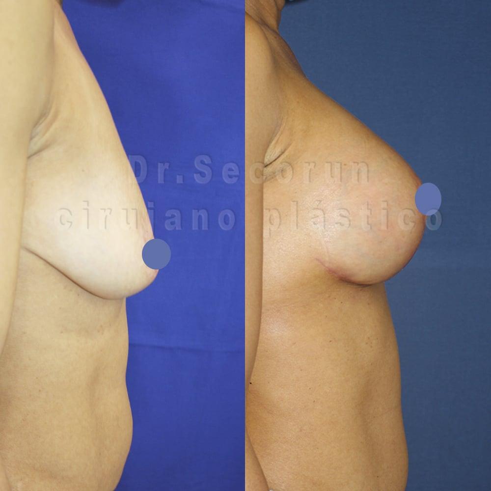 elevacion mamaria con protesis 2020 1 2 Elevación de pecho