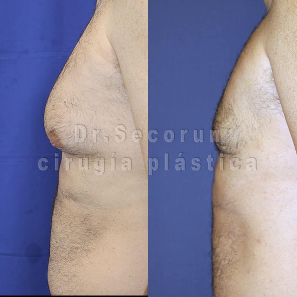 ginecomastia 2020 21 Ginecomastia | Eliminación de pecho en hombres
